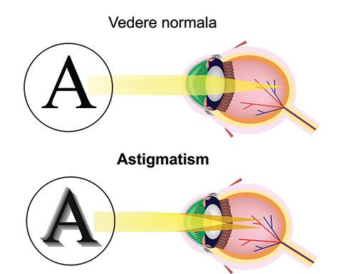astigmatism-vedere