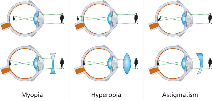 miopia-astigmatism-hipermetropie