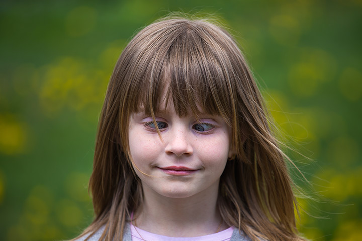 strabismul la copii